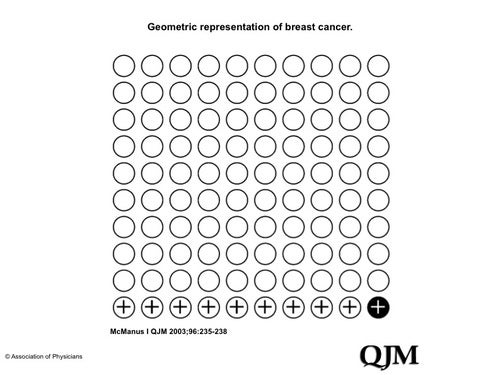 Geometric representation of breast cancer
