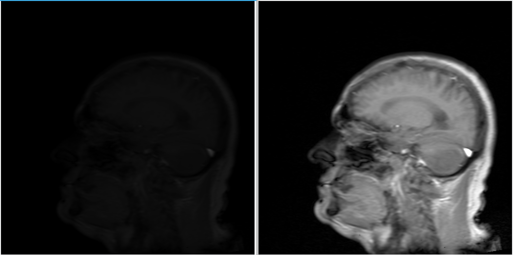 Dicom image before and after normalize