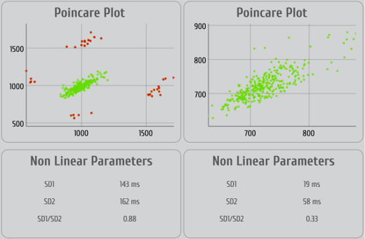 Pointcaré plot