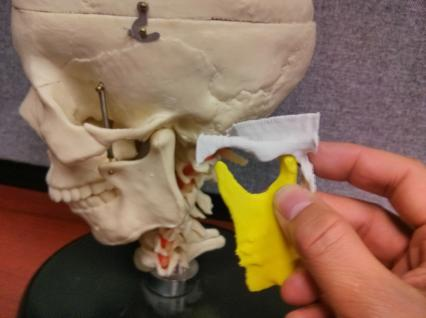 3D Printed models of the mandible and temporal bones