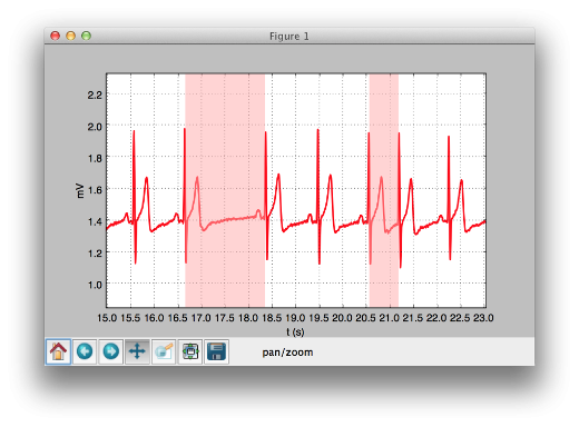 BITalino ECG results showing heart rate